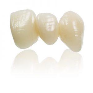 dental crown cost Adelaide