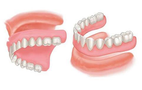 affordable dentures in Adelaide