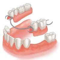 partial dentures in Adelaide
