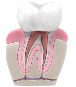 root canal cost Adelaide