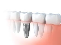 find_a_dentist_for_implants